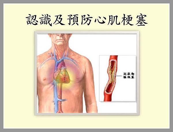 3認識及預防心肌梗塞