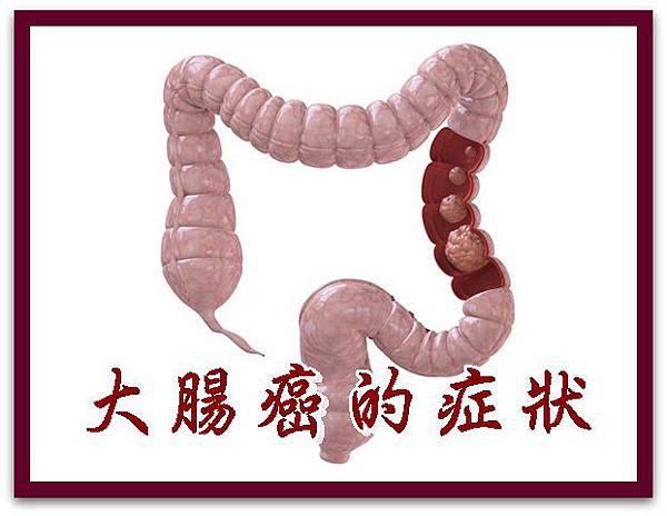大腸癌的症狀