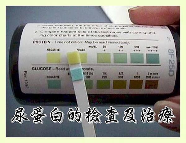 尿蛋白的檢查及治療