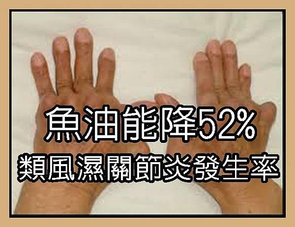 魚油能降52%類風濕性關節炎發生率