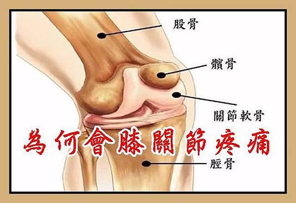 為何會膝關節疼痛
