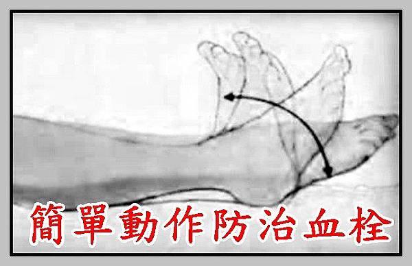 簡單動作防治血栓