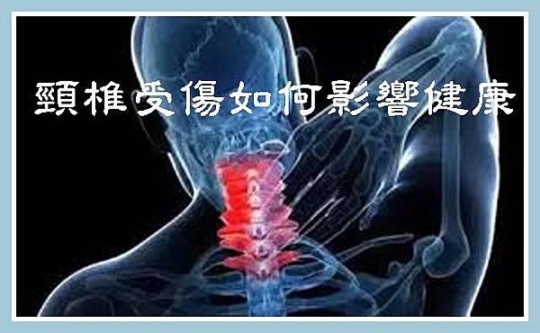 頸椎受傷如何影響健康