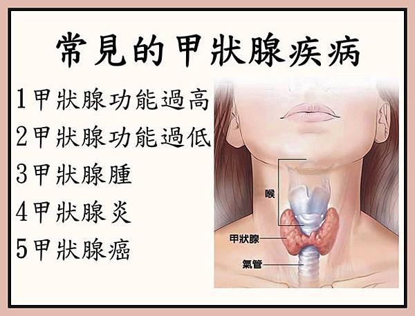 常見的甲狀腺疾病1