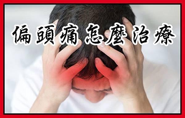 偏頭痛怎麼治療