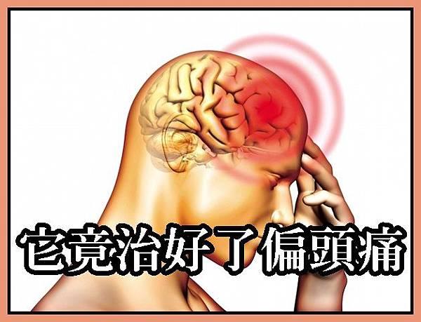 它竟治好了偏頭痛