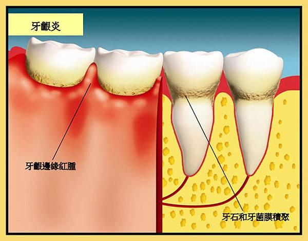 牙痛流血是否有牙周病呢?認識牙周病2 (2)