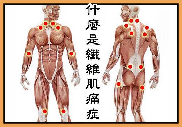什麼是纖維肌痛症