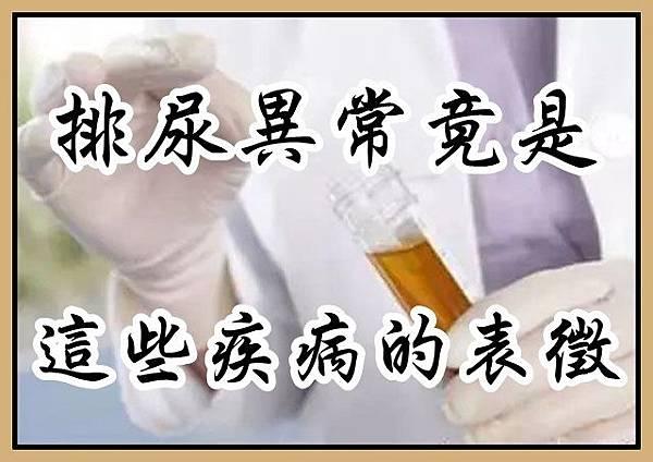 排尿異常竟是這麼多疾病的表徵