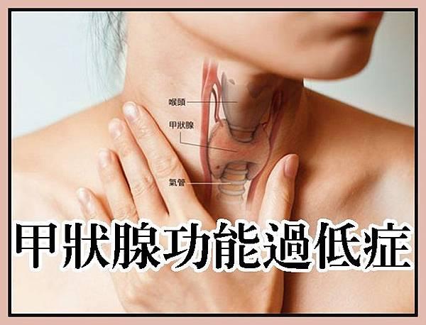 甲狀腺功能過低症4