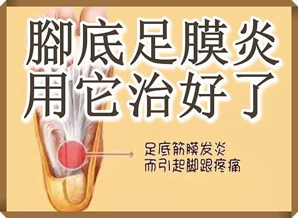 腳底足膜炎用它治好了.jpg