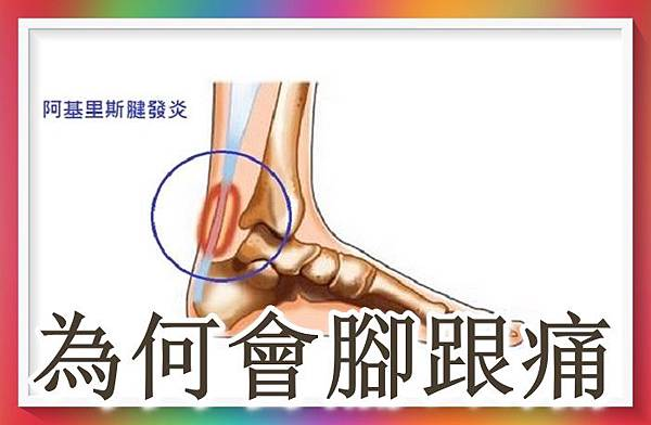 為何會腳跟痛.jpg