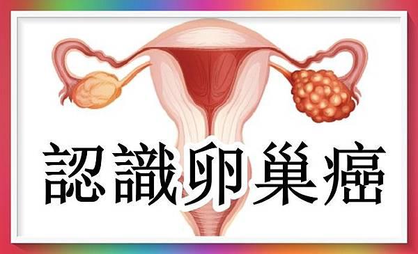 女性三大癌症之卵巢癌.jpg