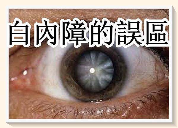 50 歲要注意保護好眼睛。警惕白內障的誤區.jpg