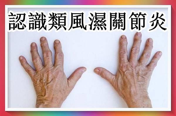 認識類風濕關節炎.jpg