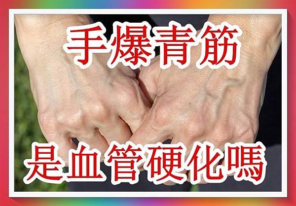手爆青筋是血管硬化嗎?(專家分析).jpg