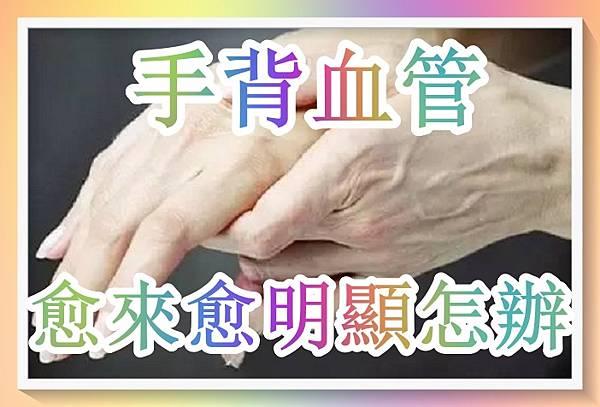 手背血管愈來愈明顯怎辦?皮膚醫生的忠告!.jpg