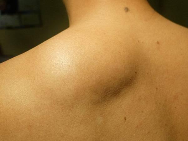 到底為什麼會得脂肪瘤 怎樣才能預防脂肪瘤.jpg