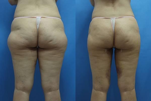 自體脂肪修臀