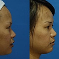 微晶瓷隆鼻術前術後照2.JPG
