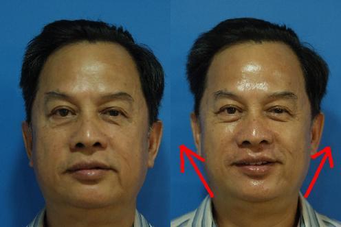 光波拉皮術前術後照2.JPG