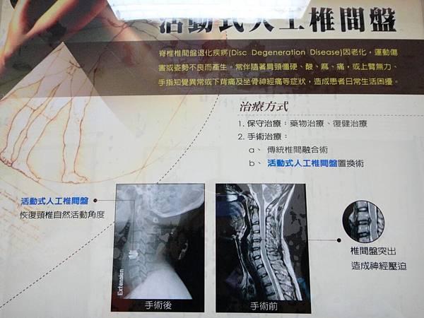 活動式人工椎間盤