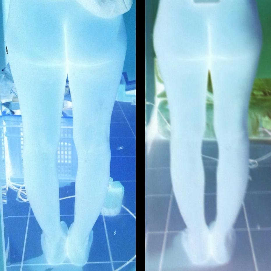 O型腿矯正11個月紀錄