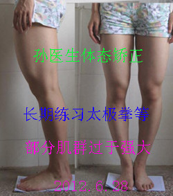 O型腿實例