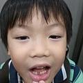 掉了第一顆乳牙