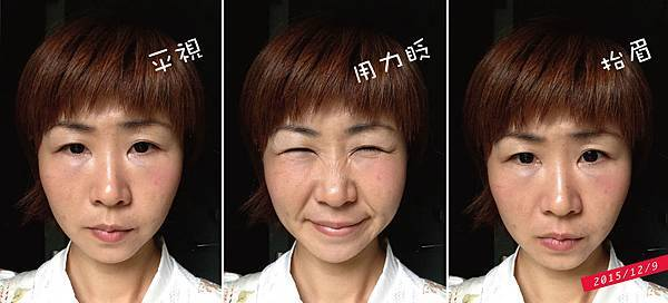 抬頭紋魚尾紋肉毒淚溝眼袋記錄20151209.jpg