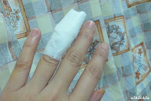 20110216_割傷.JPG