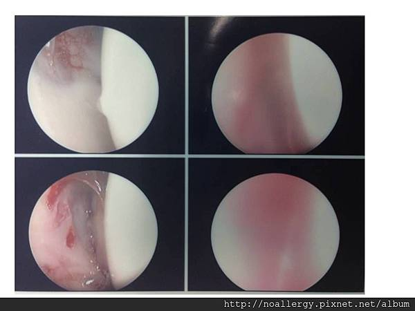 JIA arthroscopy.jpg
