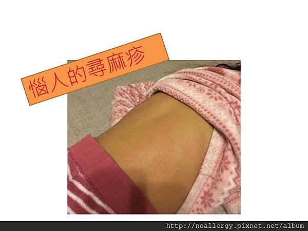 簡報尋麻疹.jpg