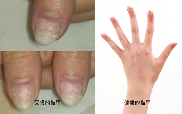 before&after_nail