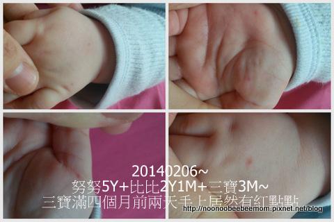 1-1030206三寶手長疹子是腸病毒了&豆漿機.jpg