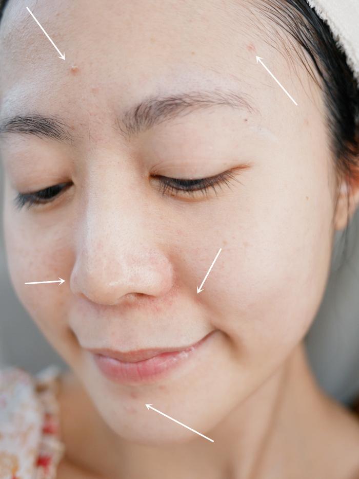 【A醇保養品推薦】法國品牌DERMEDEN得美登1%A醇煥能再生修護精華液%2F眼霜 ▎讓肌膚煥然一新的小秘訣!