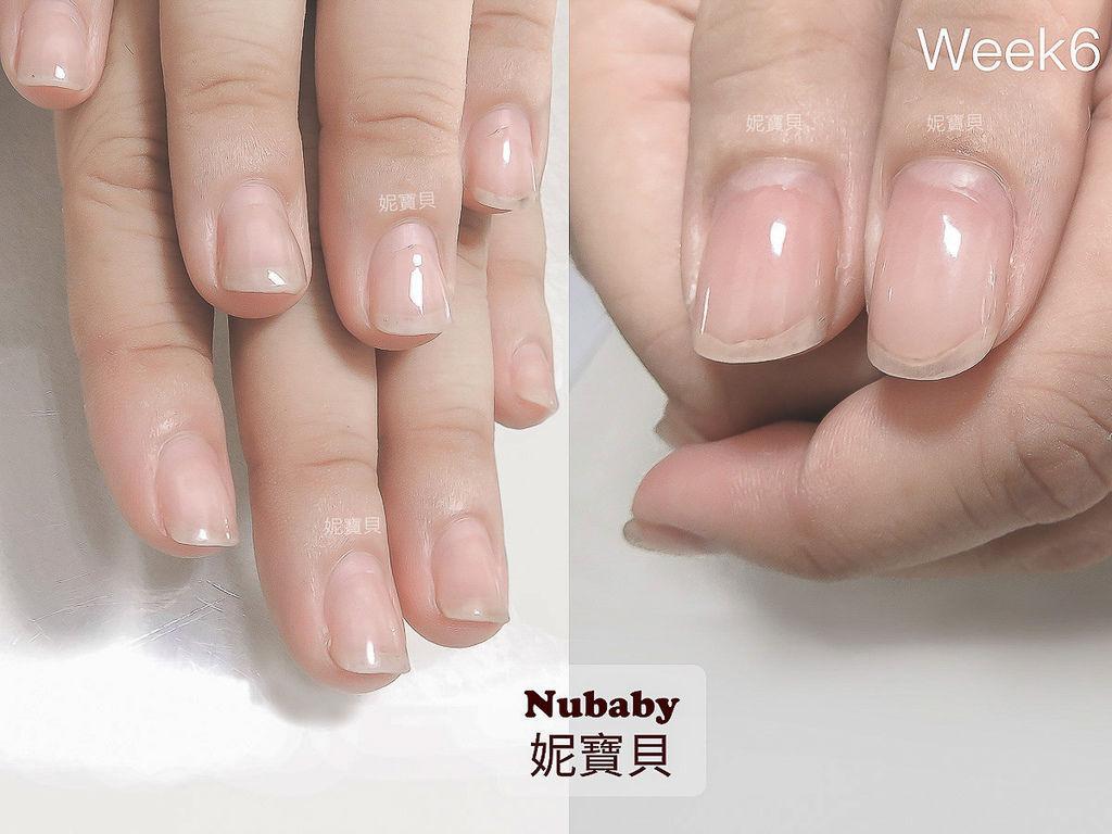 指甲矯正 扁平扇形甲到修長美甲