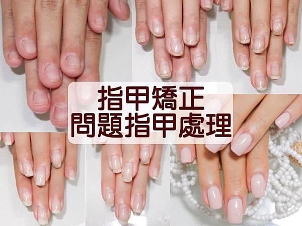 指甲矯正 & 問題指甲處理 詳細說明