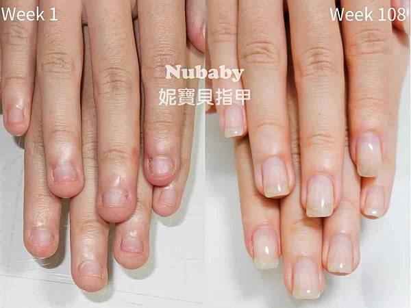 咬指甲矯正-保濕不足影響矯正進度