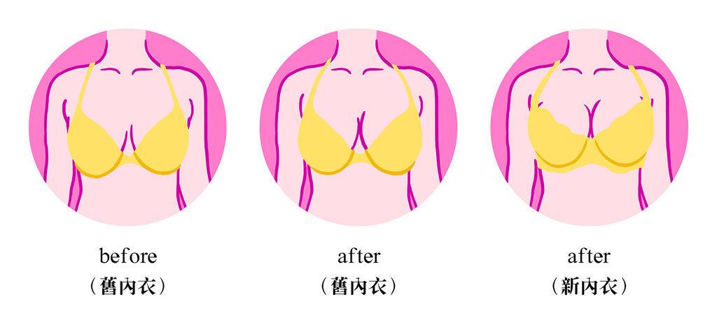 (比較)胸型變化.jpg
