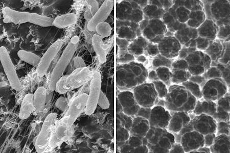 科學家找到能分解塑膠的細菌1