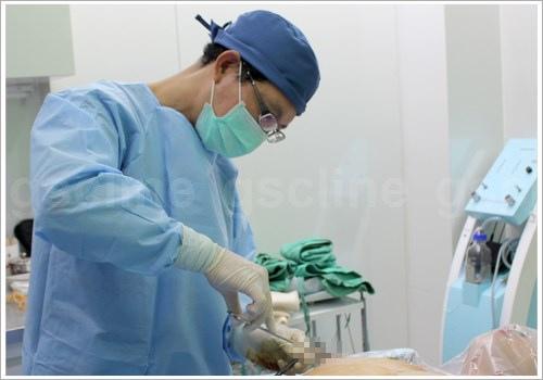 男性女乳手術縫合