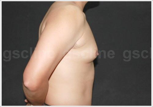 男性女乳術前