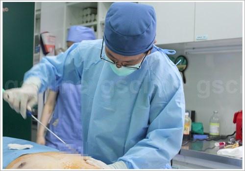 男性女乳手術引流