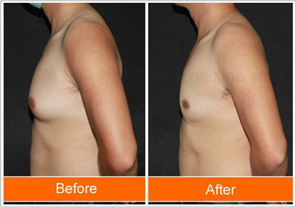 男性女乳術後對照圖