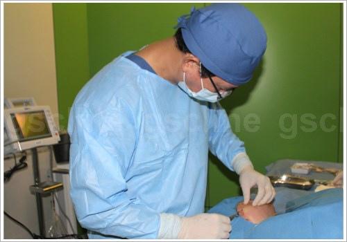 雷射溶脂瘦臉案例手術中