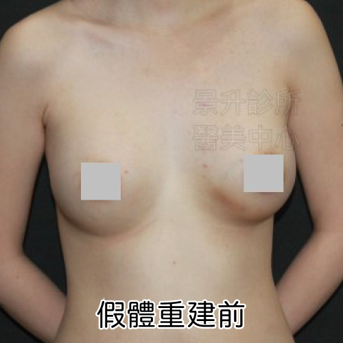before-capsular-contracture.png