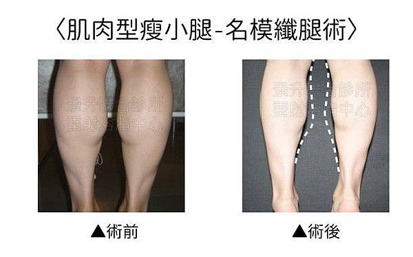 calf-slimming-1.jpg