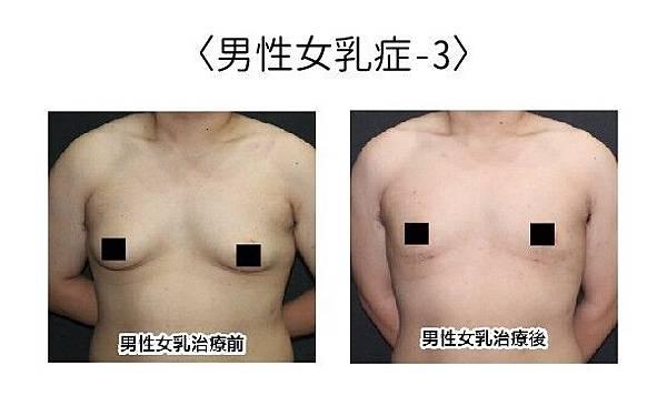 男性女乳_181012_0002.jpg