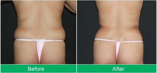 liposuction-abdomen-2.jpg